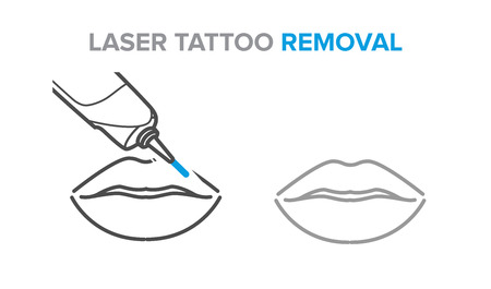 Permanent makeup removal, microblading, laser tattoo removal Stock Vector - 125597828