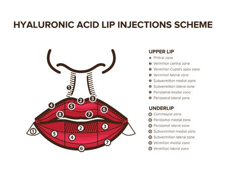 Relleno de ácido hialurónico. Inyecciones de labios. Anatomía del labio. Ilustración para su diseño Ilustración de vector