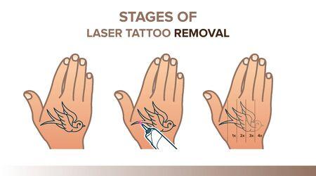 Stages of laser tattoo removal illustration Illustration