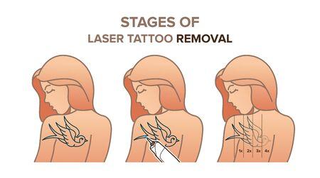 Stages of laser tattoo removal. Vector illustration for your design Illustration