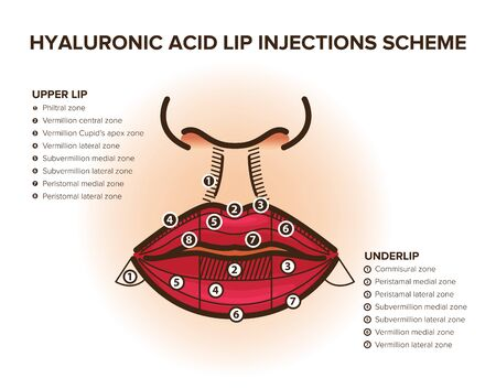Lip injections. Hyaluronic acid filler. Lip anatomy. For your design