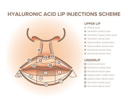 Lip injections. Lip anatomy poster. Hyaluronic acid filler. For your design