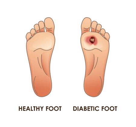 Diabetic and healthy foot. Vector illustration