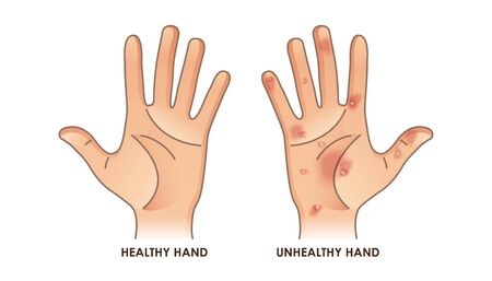 Healthy and unhealthy hand vector illustration Illustration