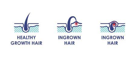 Healthy growth hair. Ingrown hair. Vector icons