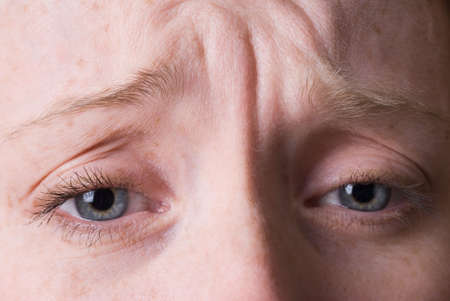 a closeup of a young woman's wrinkled brow photo
