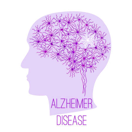 Alzheimer disease concept with human brain neurons visualilization in a head silhouette. Most of the cells are bright and some are are dead. Stock vector illustration for mental and memory illness.
