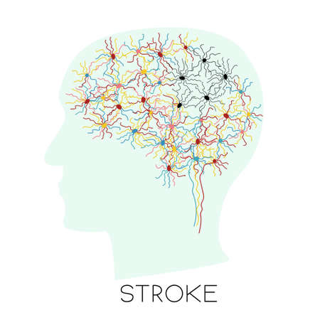 Stroke concept with human brain neurons visualilization in a head silhouette. Most of the cells are colorful and some are black. Stock vector illustration for neurological disease. Illustration