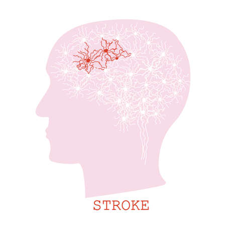 Stroke concept with human brain neurons visualization in a head silhouette most of the cells are white and some are red. Иллюстрация