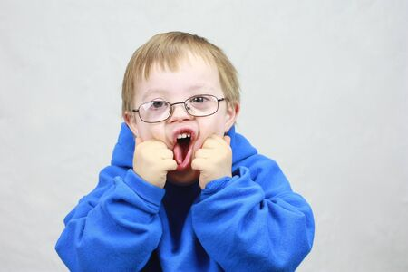 downs syndrome: Little boy with Downs Syndrome making funny face Stock Photo