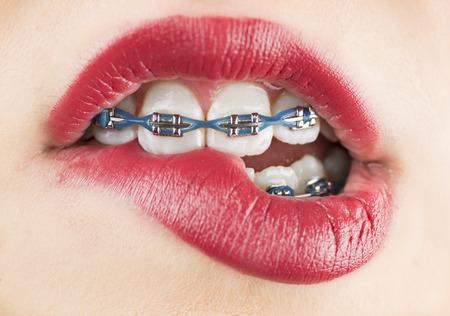 Girl with braces bitting lip Foto de archivo