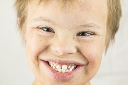 downs syndrome: Face of a young boy with Downs Syndrome