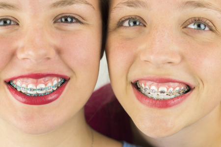 cute braces: Close up of Two Young Girls Smiling