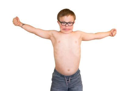 downs syndrome: Young Boy With Downs Syndrome Flexing His Muscles