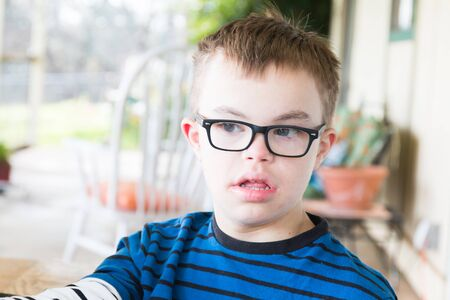 Close up of Young Boy With Downs Syndrome photo