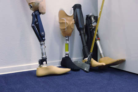 Modern prosthetic legs for people with ampute