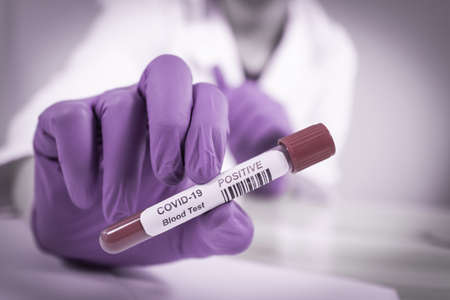 Coronavirus COVID-19 Infected Blood Sample in Doctor Scientist Hands. Epidemic and Virus Outbreak. Reklamní fotografie