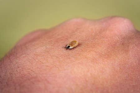 Engorged tick on a human skin. Lyme disease caused by borrelia. 版權商用圖片