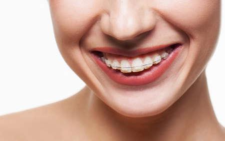 Jonge vrouw glimlach met tandsteunen Stockfoto