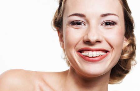 歯ブレースと若い女性の肖像画