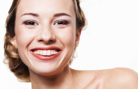 Young woman portrait with dental braces photo
