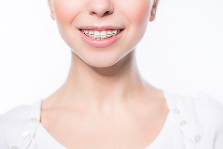 Beautiful young woman with teeth braces Banco de Imagens