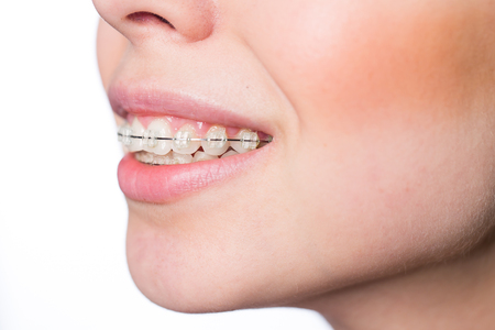 Young woman mouth with teeth braces isolated on white Banco de Imagens