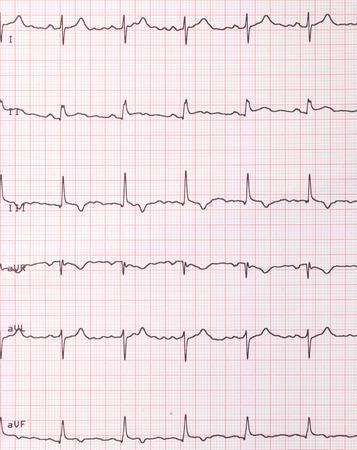 cardiogram: Heart beats cardiogram