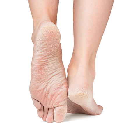 sore skin of feet, crack, dry heels, clipping path