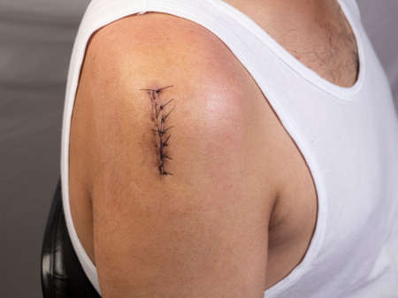 Close-up of surgical incision on right shoulder joint closed with sutures Stock fotó