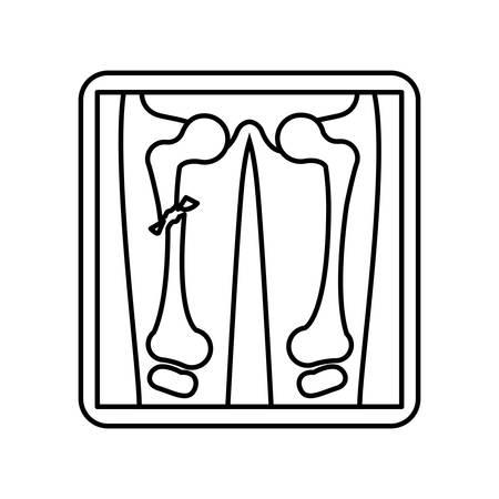 vertebra: silhouete screen with x-ray of bones vector illustration