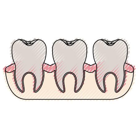 enjuague bucal: Dientes con vista de raíz de diente en silueta de crayón de color
