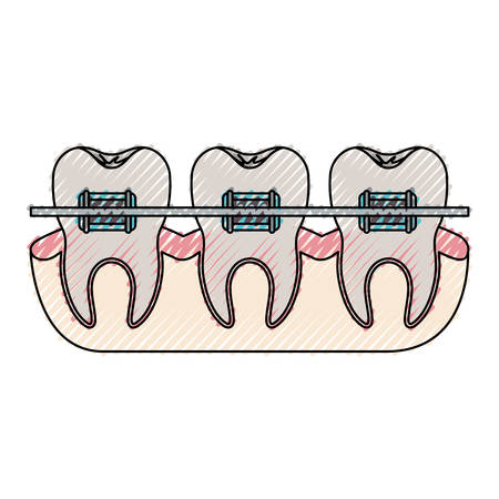 Teeth with braces and tooth root view in colored crayon illustration. Illustration