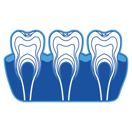 Teeth with nerve and tooth root view in blue silhouette vector illustration.