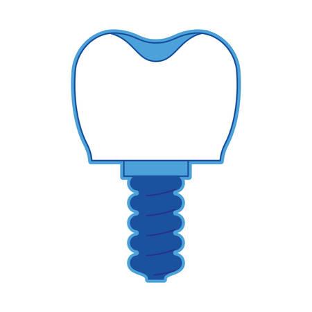 enjuague bucal: Implante dental con tornillo en silueta azul, ilustración vectorial.