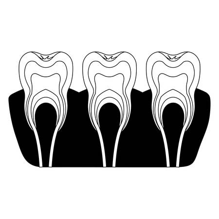 teeth with nerve and tooth root view in black silhouette vector illustration Illustration