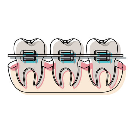 teeth with braces and tooth root view in watercolor silhouette vector illustration