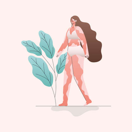 vitiligo woman cartoon in underwear with leaves design, Love and care yourself theme Vector illustration