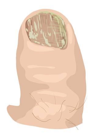 dolore ai piedi: Onicomicosi illustrazione