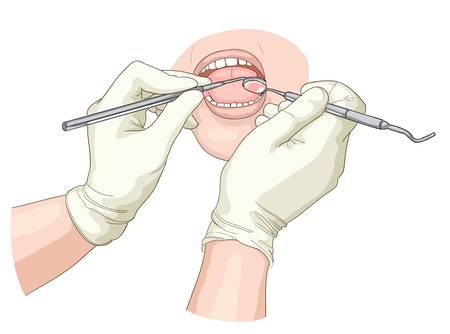 Il trattamento l'illustrazione stomatologo