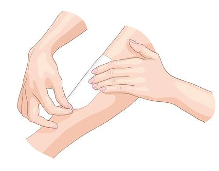 Waxing epilation. Vector illustration. Illustration
