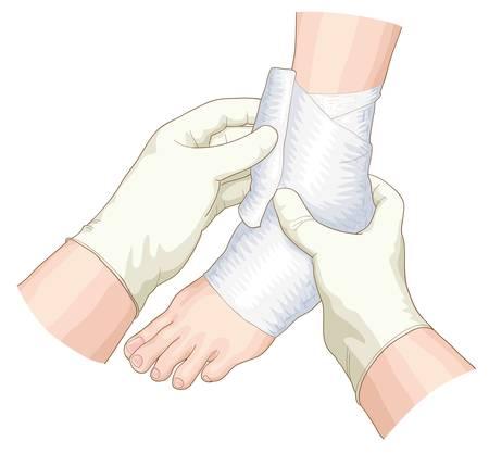 fractura: El vendaje en la articulaci�n. Vector ilustraci�n.