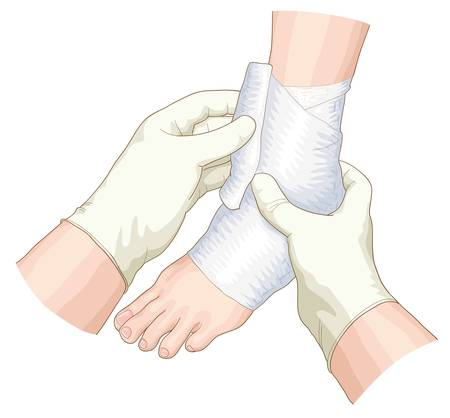 leg injury: The bandage on the joint. Vector illustration. Illustration