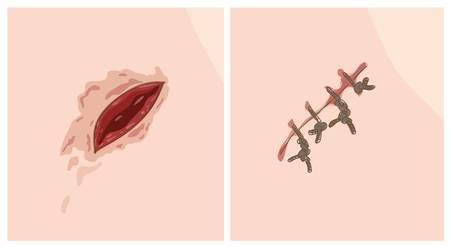 incision: Wound and scar. Vector illustration.