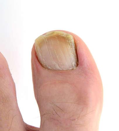 rotten: Onychomycosis.