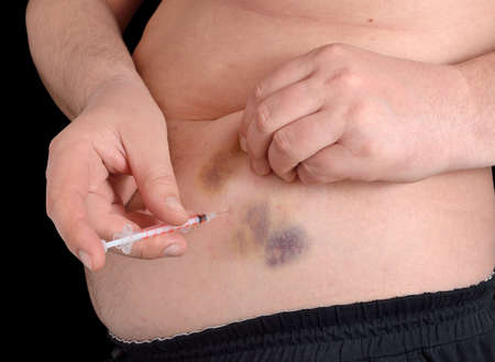 hematoma: Insulin injection in a belly. Skin with post-injection hematoma.
