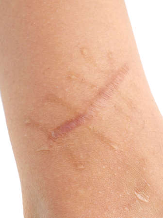 suture: The scar.