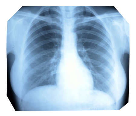 Photo X-ray of a healthy lung and heart Stock Photo