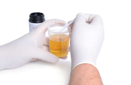 investigates: The laboratory assistant investigates urine from test strips. Isolated. Stock Photo