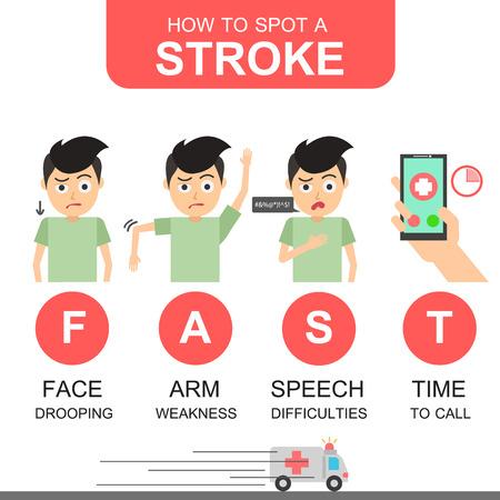 Identificación de los primeros signos de accidente cerebrovascular en el hombre. Elementos de infografía médica y de salud sobre fondo blanco.